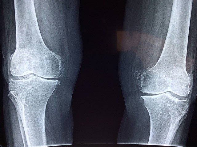 knees after Viscosupplementation Injections