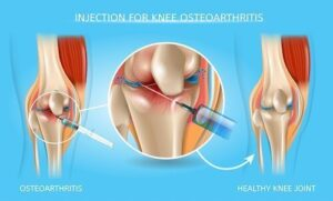 Injection for Knee Osteoarthritis