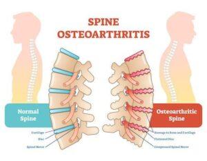 Spine Osteoarthritis