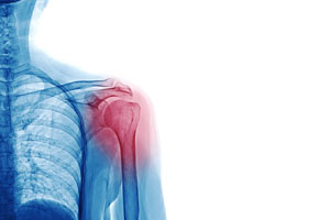 Shoulder-tendonitis